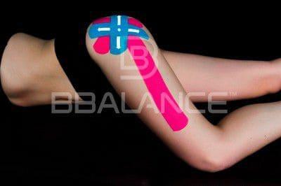 Наложение кинезио тейпа при боли в бедре и верхней части колена (синдром ITBS или синдром подвздошно-большеберцового тракта)