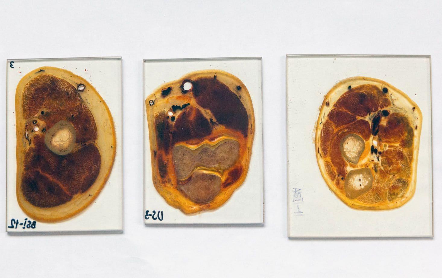 Анатомия тейпирования 3D. Верхняя конечность Фото-3