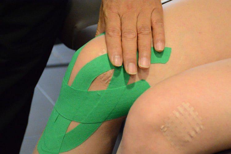 Тейпирование коленного сустава при артрозе схема Фото-3