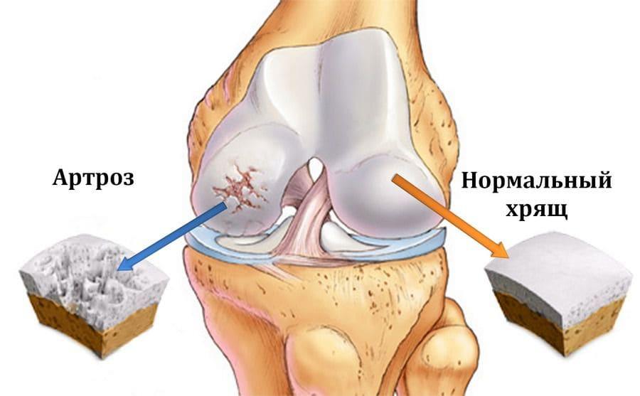 Тейпирование коленного сустава при артрозе схема Фото-1
