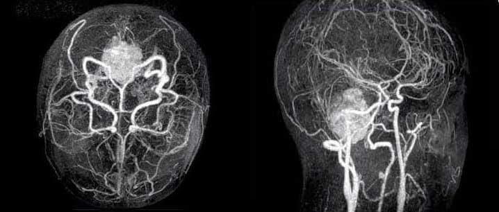 процедура магниторезонансной томографии или ангиографии