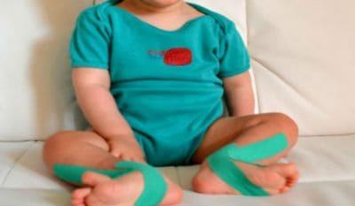 Тейпирование при вальгусной деформации стопы у детей