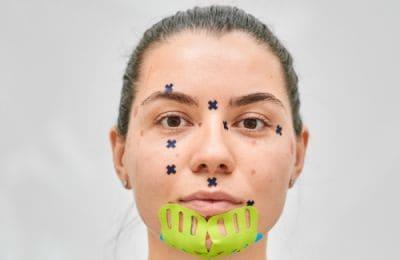 Какие проблемы кожи лица решает тейпирование