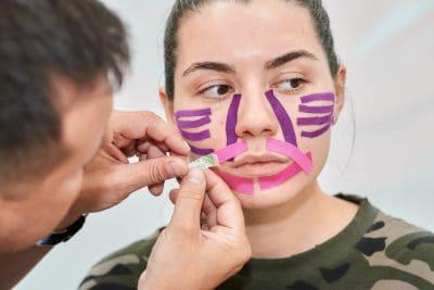 Тейпирование лица и шеи в косметологии