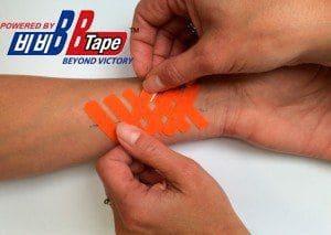 Применение кинезио тейпа при лечении рубцов и шрамов