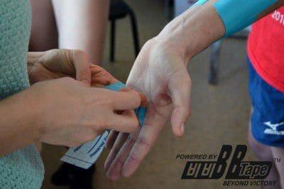 Кинезиотейпирование пальцев руки